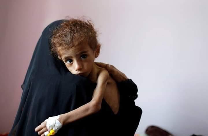Visas pour le #Yémen!!